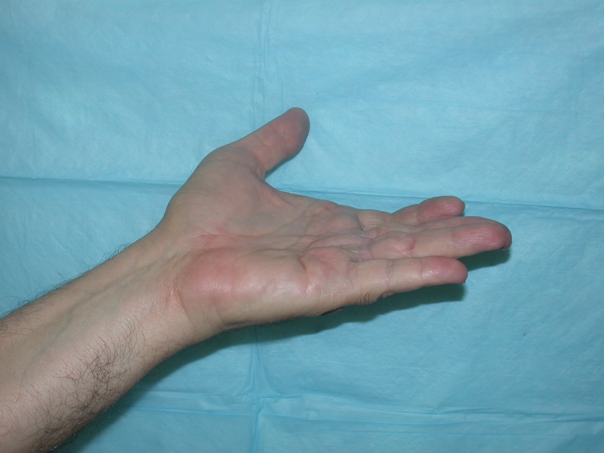 Dupuytren's contracture After